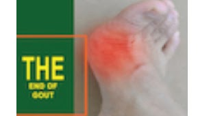 $10 OFF End Of Gout Coupon Code