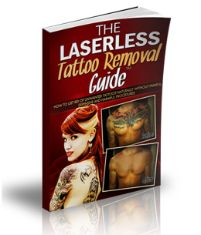 Laserless Tattoo Removal